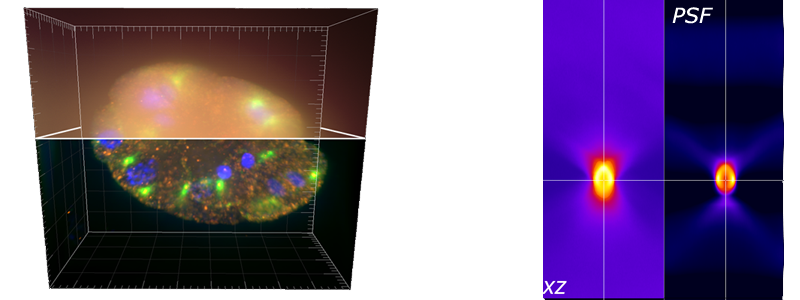 3D Deconvolution Microscopy